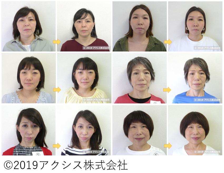 顔臨床試験モニター